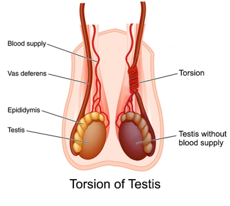 torsion-of-testis